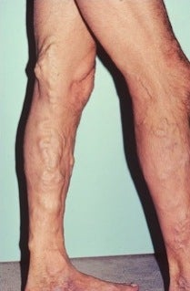 Phlebectomy Leg Vein Removal before 370430