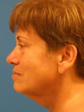 Lower Facelift and Necklift with Platysmaplasty  before 242881