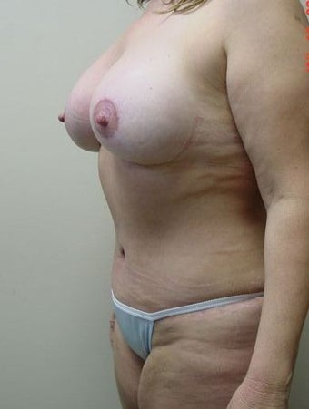 Breast Lift/Augmentation/Tummy Tuck 318570