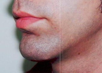 Chin augmentation using prosthesis after 393547