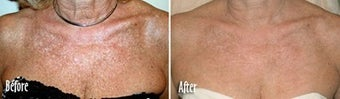 IPL for Age Spots and Uneven Skin Tone on Chest before 6384