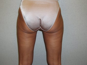 Liposuction Buttocks and Thighs after 55469