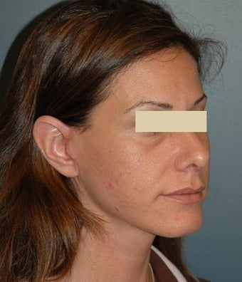 cheek lift after 137731