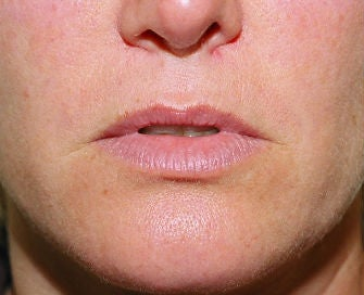 Lip lift, corner of lip lift, and filler in lips before 299914