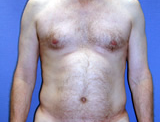 Male Liposuction of the back and abdomen  before 125015