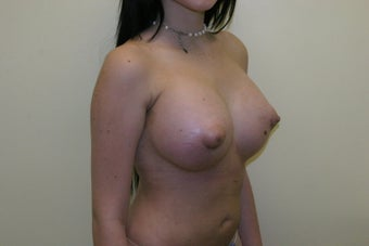 Breast augmentation 365698