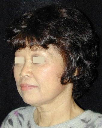 Facelift / Necklift  before 103848