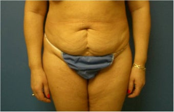 Abdominoplasty, Tummy Tuck, Liposuction before 401748