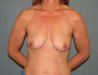 Breast lift before 334360