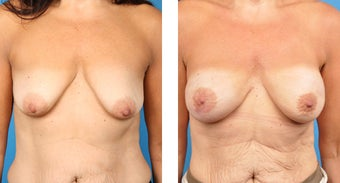 Breast Reconstruction: One-Stage Breast Reconstruction before 561811