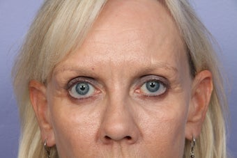 Eyelid Surgery after 306429