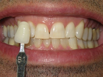 Zoom Whitening after 303412