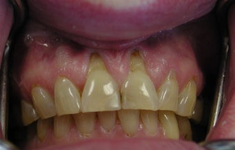 Gum lift (Crown Lengtheing), Root coverage with soft tissue Graft,  before 565879