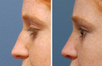 Rhinoplasty after 314278