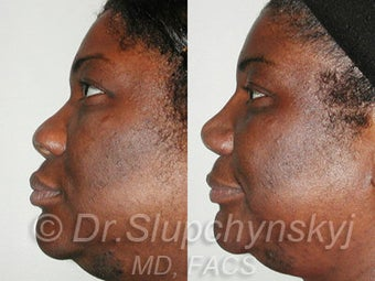 African American Rhinoplasty after 525577