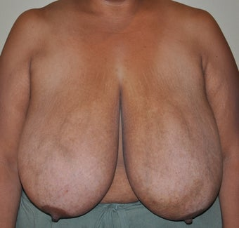 Breast Reduction before 530711
