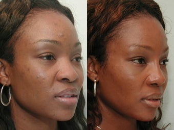 African American Rhinoplasty before 210294