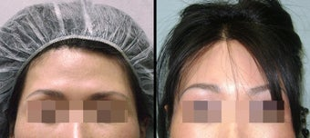 Endoscopic Brow Lift before 649394
