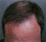 Hair Transplant after 426683