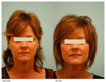 Acne Scarring Correction before 136801