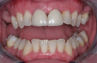 Invisalign, implants, whiteing and veneers before 372730