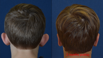 9 Year Old Male Child Treated for Prominent Ears after 639870