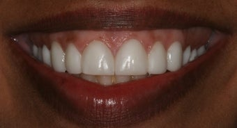 Veneers, gumlift before 358197