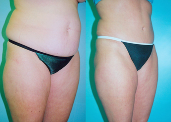 Tummy Tuck before 263628