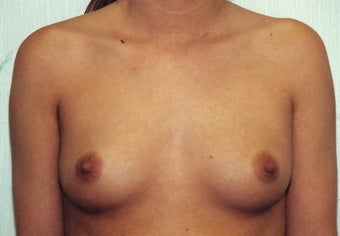 Breast Augmentation before 266791