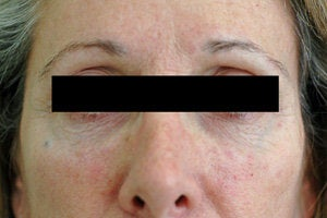 Restylane for dark circles under the eyes after 93362