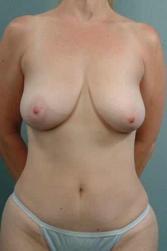 Mastopexy/Lift before 240904