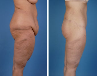 Lower Body Lift and Thighplasty 335986