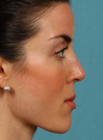 Revision Rhinoplasty 581089