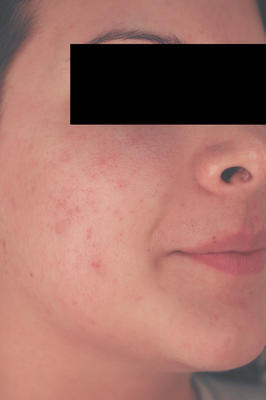 Laser Acne Treatment after 82981