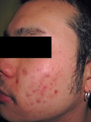 Laser Acne Treatment before 82941