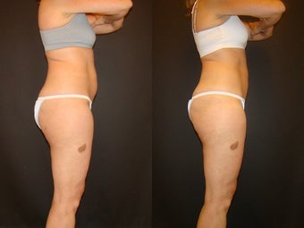 CoolSculpting before 576271