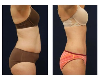 Tummy Tuck or Abdominoplasty before 283301
