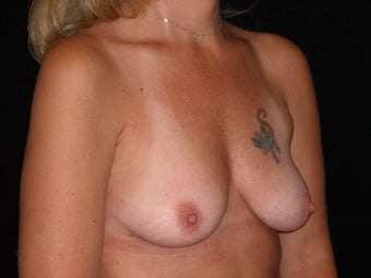 Breast implants and periareolar breast lift before 222301