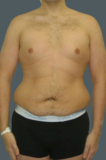 Male tummy tuck before 617898