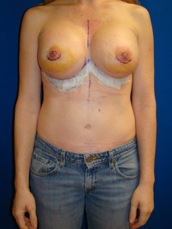 Silicone breast implant revision surgery after 79492
