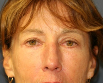Upper and Lower eyelid blepharoplasty after 380415