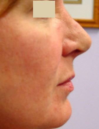 Radiesse Cheek Lift  after 152204