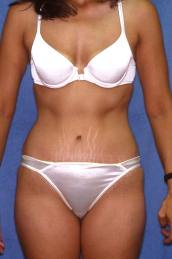 Tummy Tuck with Liposuction after 410983