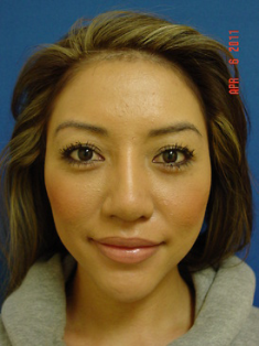 Chin Augmentation/rhinoplasty after 383867