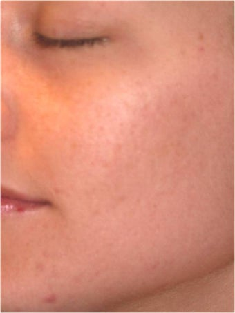 Fraxel - Acne Scarring after 652394