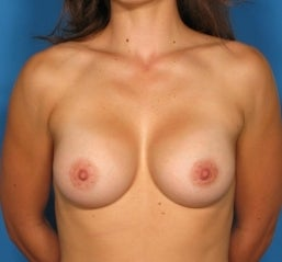 Breast augmentation,  after 463744