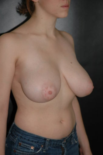 Breast Reduction before 168113