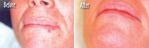 Microdermabrasion Chin and Mouth before 6394