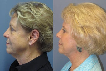 Lite Lift™, brow lift, liposuction of the nec, neck lift, blue peel after 523736