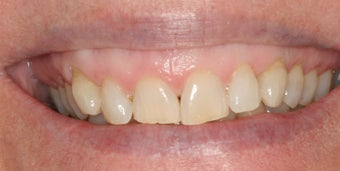 Orthodontics, all porcelain veneers, gum re-contouring before 503144